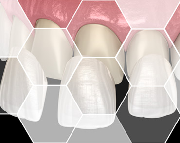 dental prosthetics maxilomed