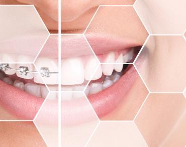 orthodontics maxilomed