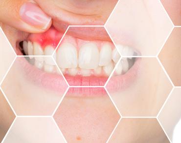 periodontology maxilomed