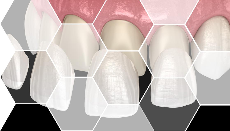 dental prosthetics maxilomed dr raluca juncar